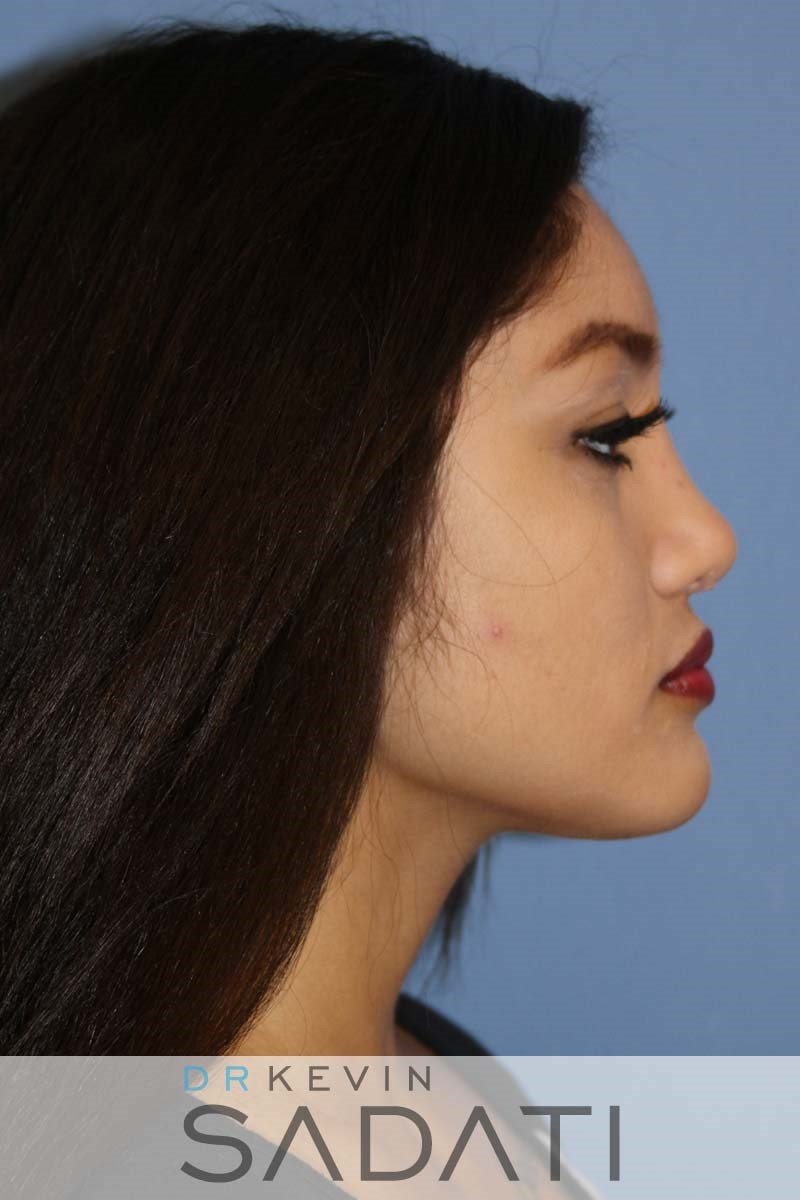 Female Nose Job Procedure After
