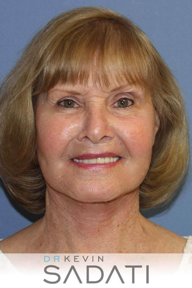 76 Year Old Female Facelift After