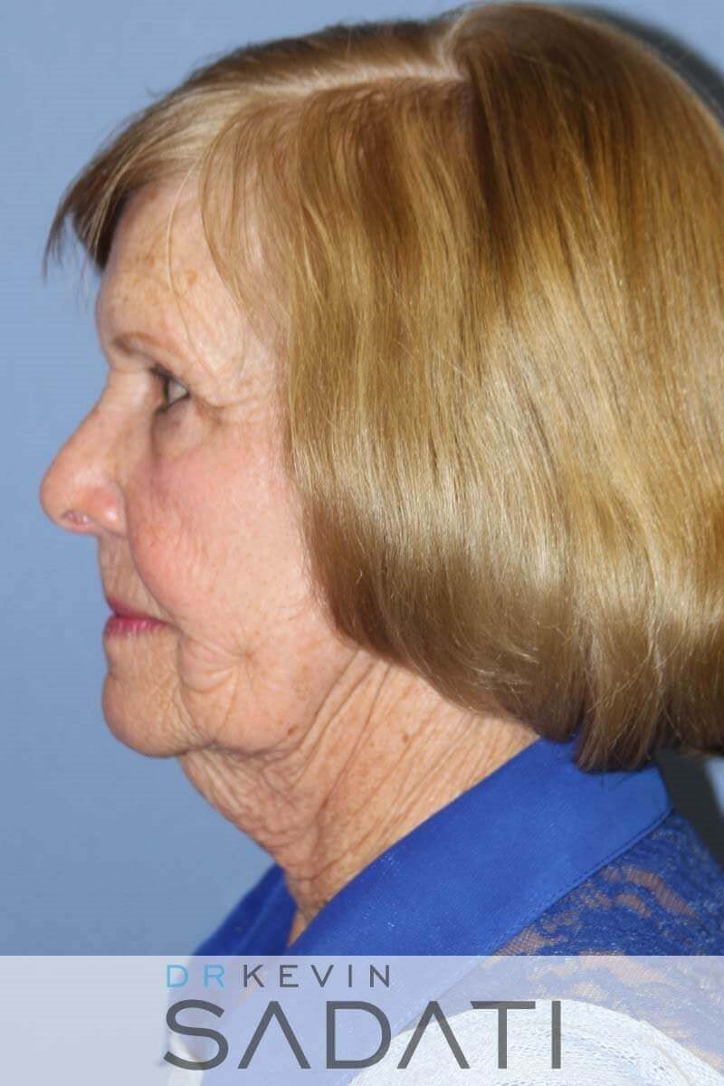 76 Year Old Female Facelift Before