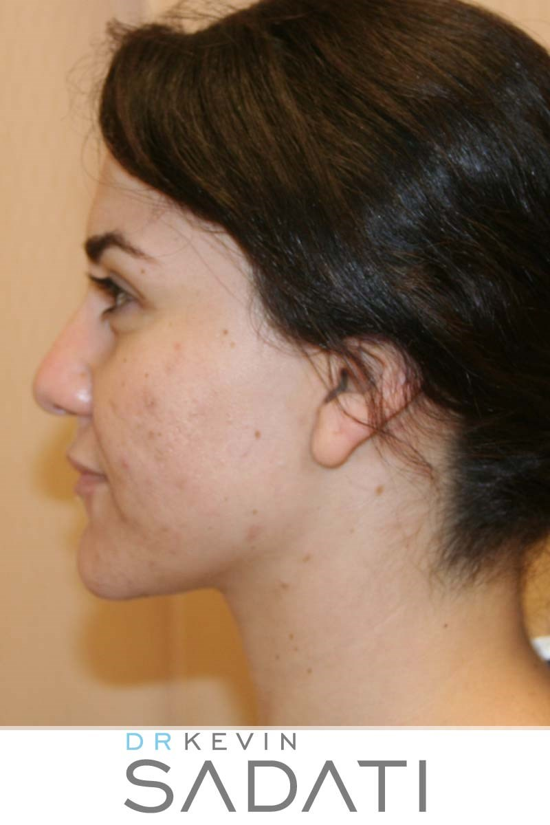 Rhinoplasty Before and After Before