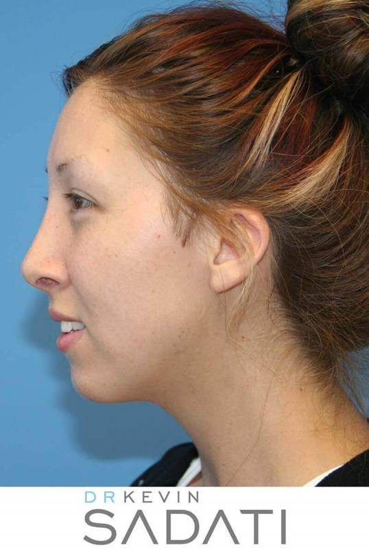 Female Rhinoplasty Left View After