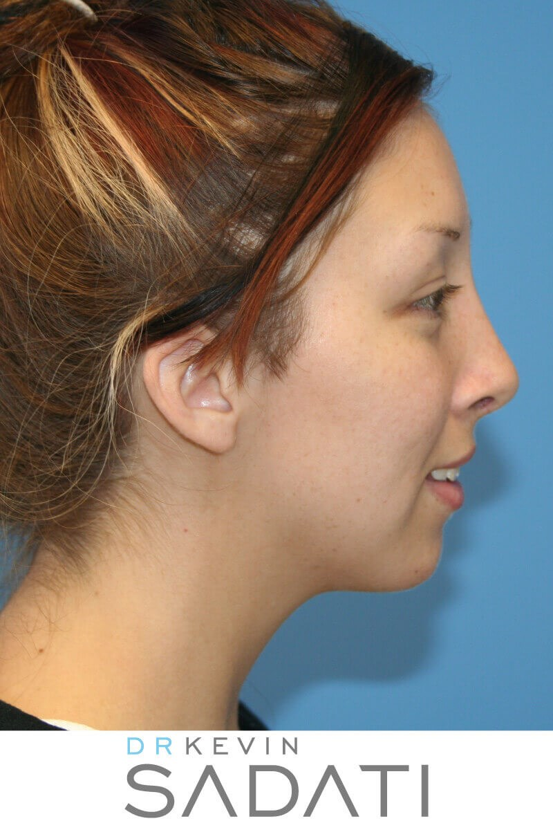 Female Rhinoplasty Right View After