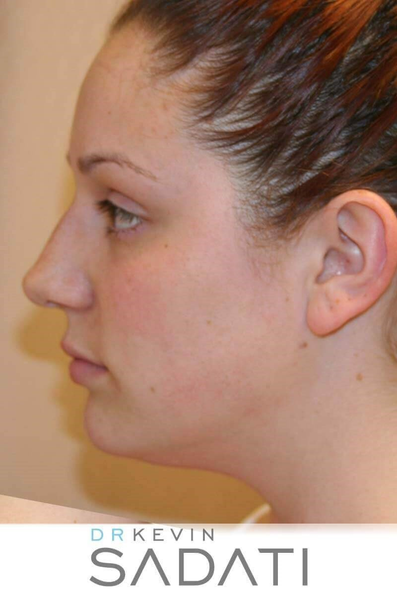 Orange County Rhinoplasty Before