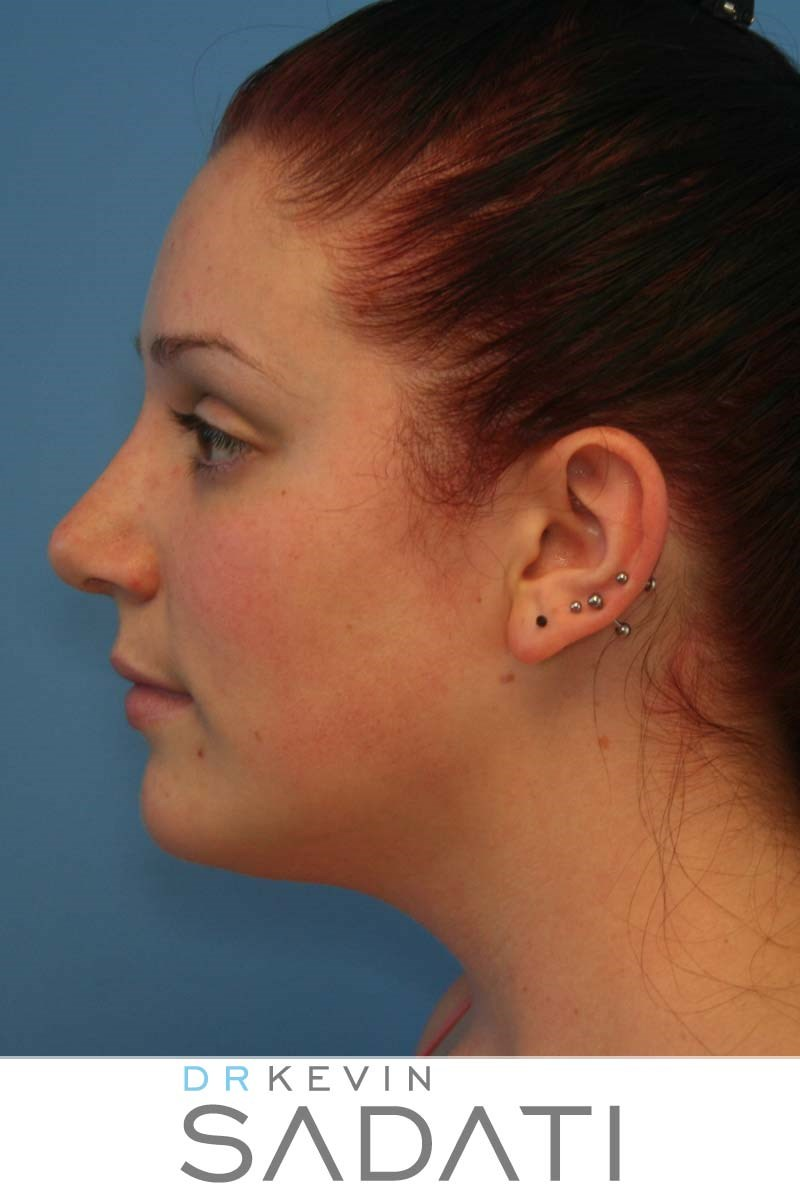 Orange County Rhinoplasty After