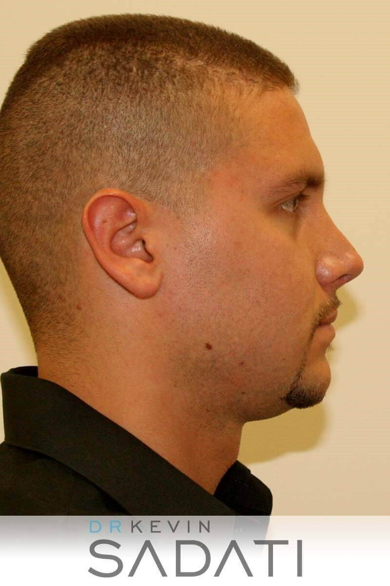 Mens Revision Rhinoplasty After