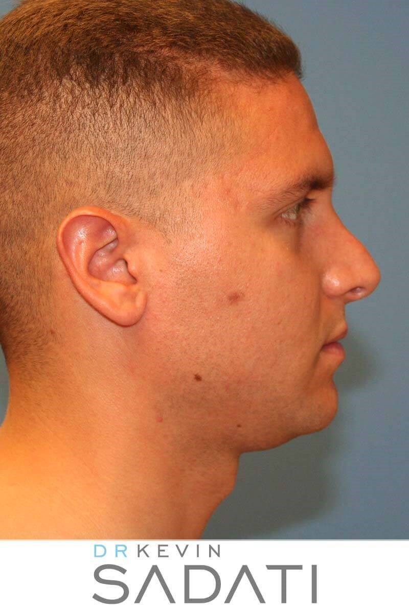 Mens Revision Rhinoplasty Before