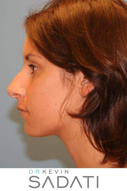 Teen Rhinoplasty Orange County Before