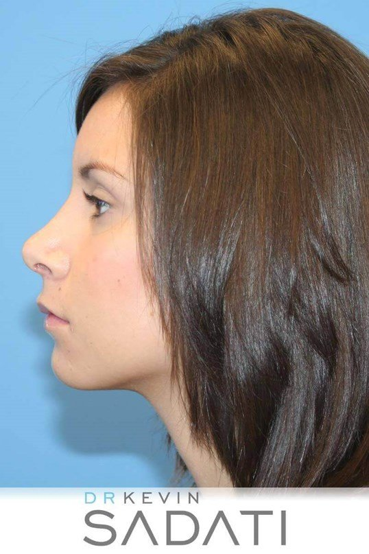 Teen Rhinoplasty Orange County After