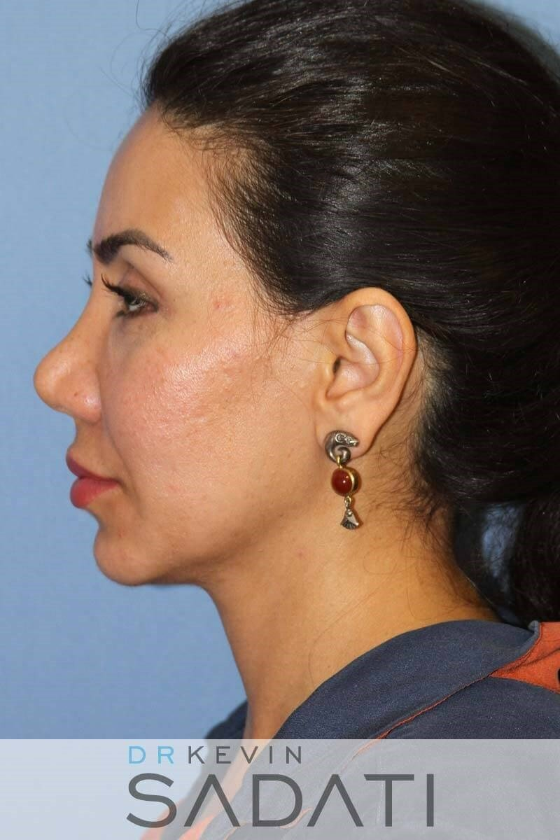 Non Surgical Nose Job Before