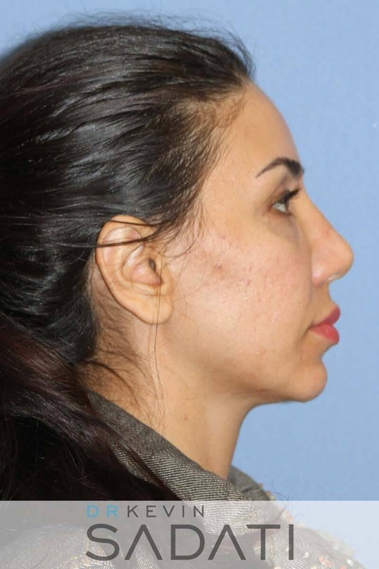 Non Surgical Nose Job After