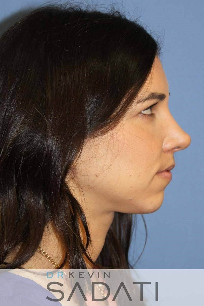 Non-surgical Rhinoplasty Before