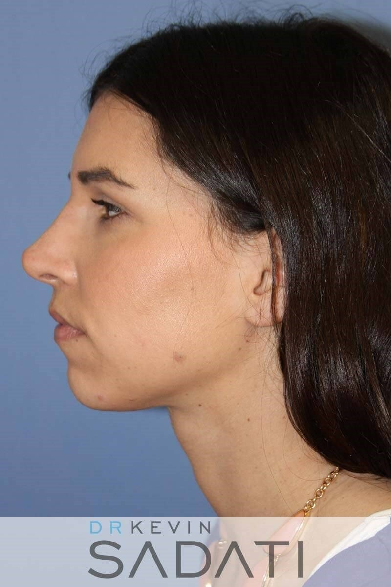 Non-surgical Rhinoplasty After