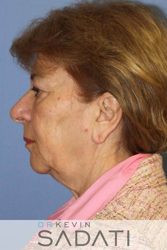 los angeles neck lift Before
