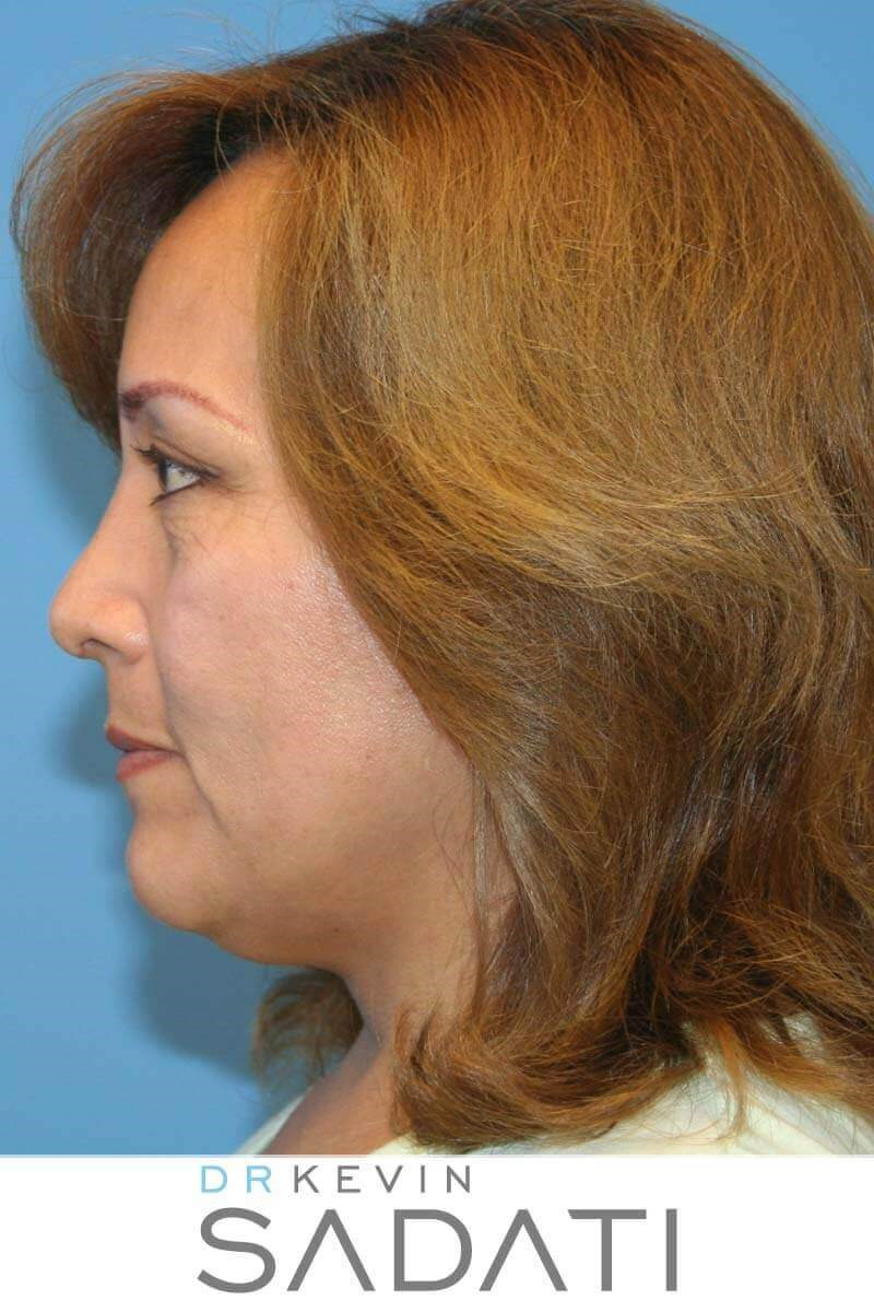 Female Nose Job After