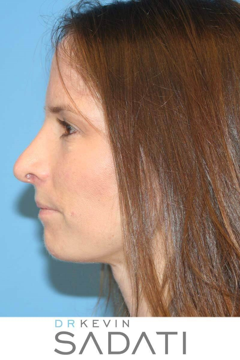Nose Surgery Before and After After