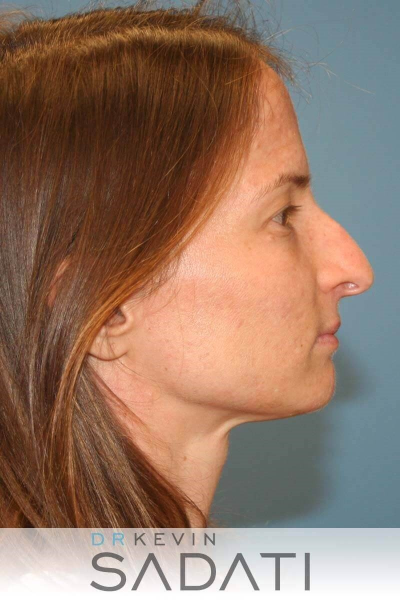 Nose Surgery Before and After Before