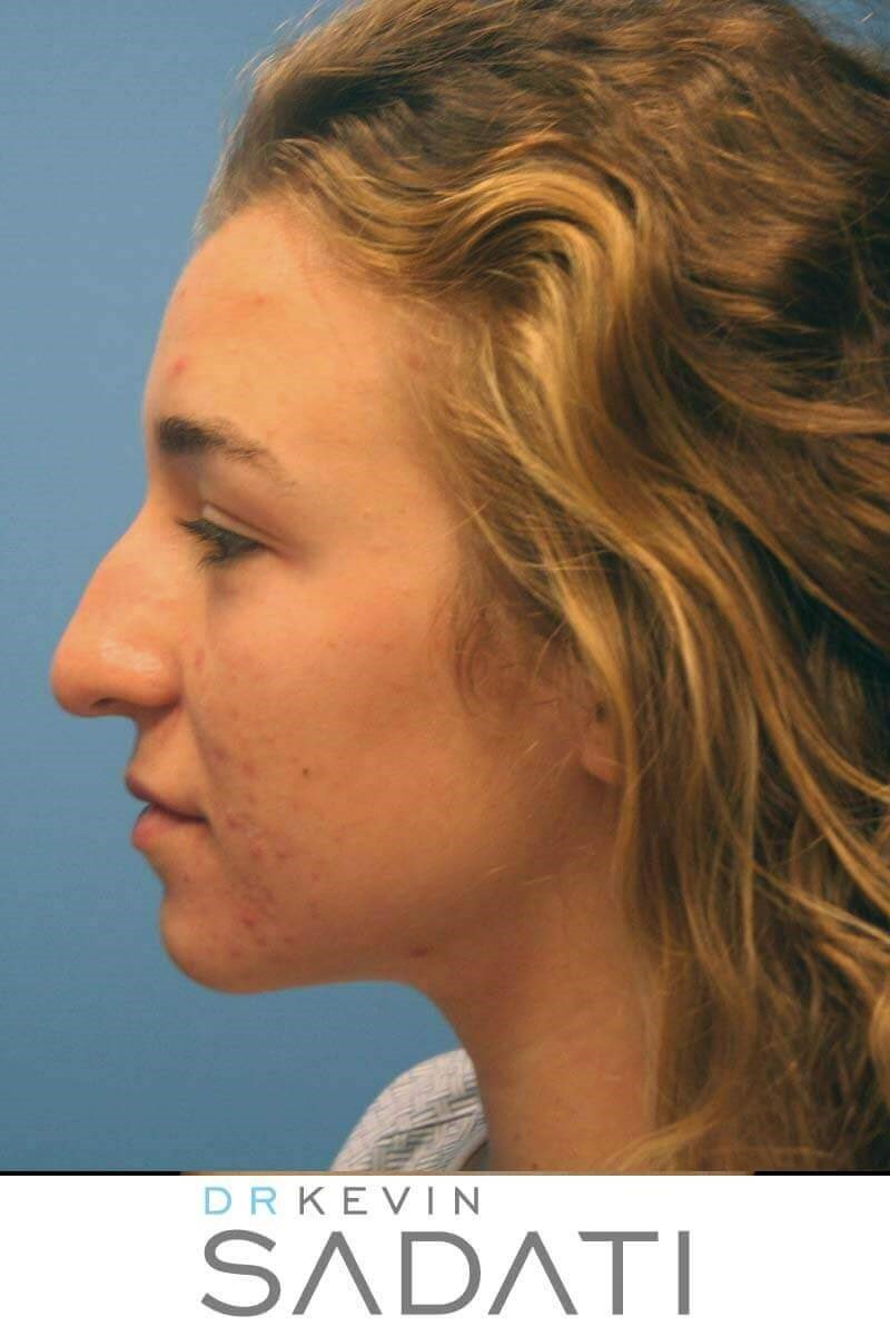 Teen Rhinoplasty Newport Beach Before