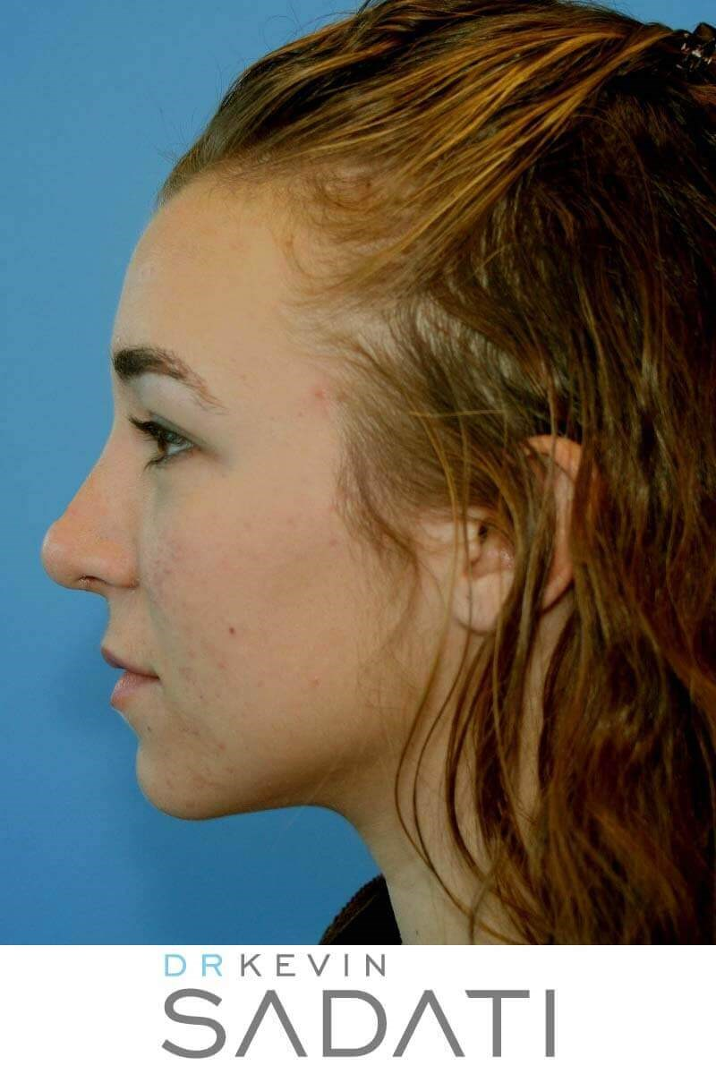 Teen Rhinoplasty Newport Beach After