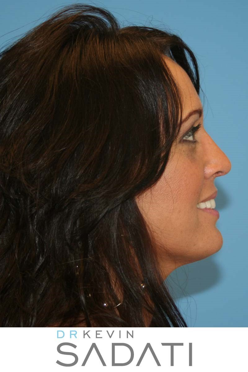 Rhinoplasty in Orange County After