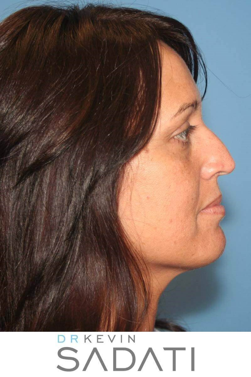 Rhinoplasty in Orange County Before