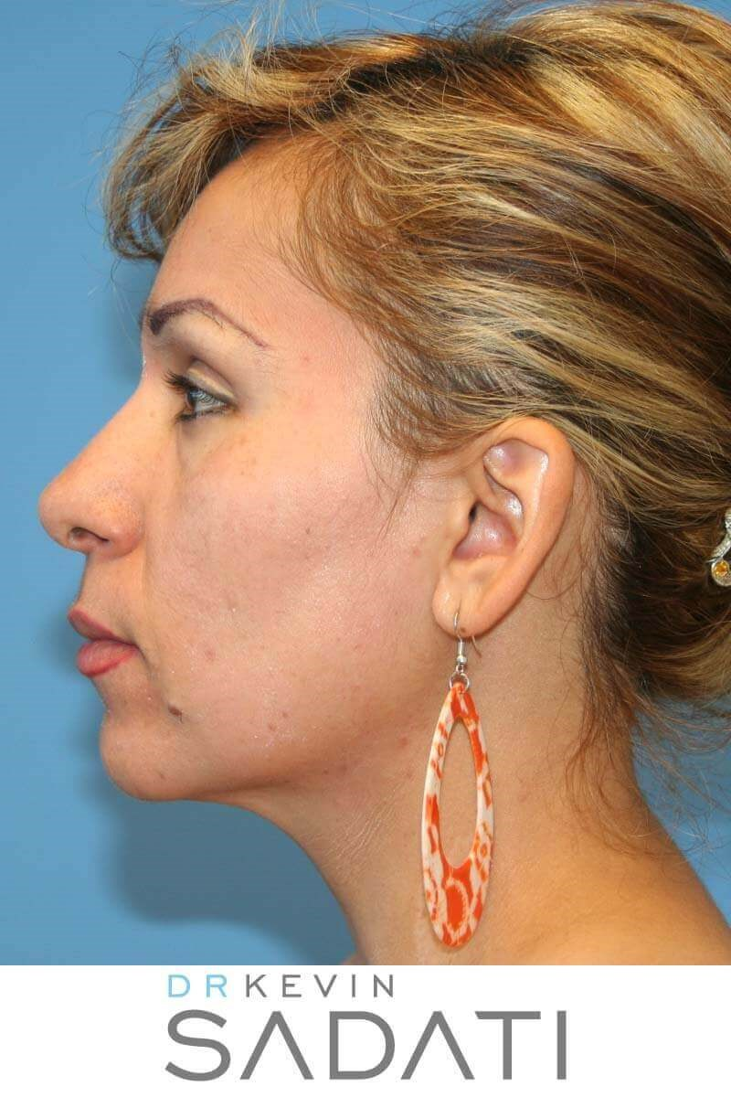 Nose Job Orange County After