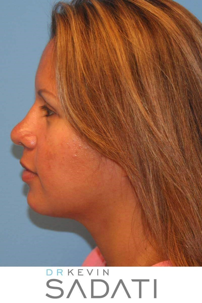 Open Rhinoplasty Procedure After