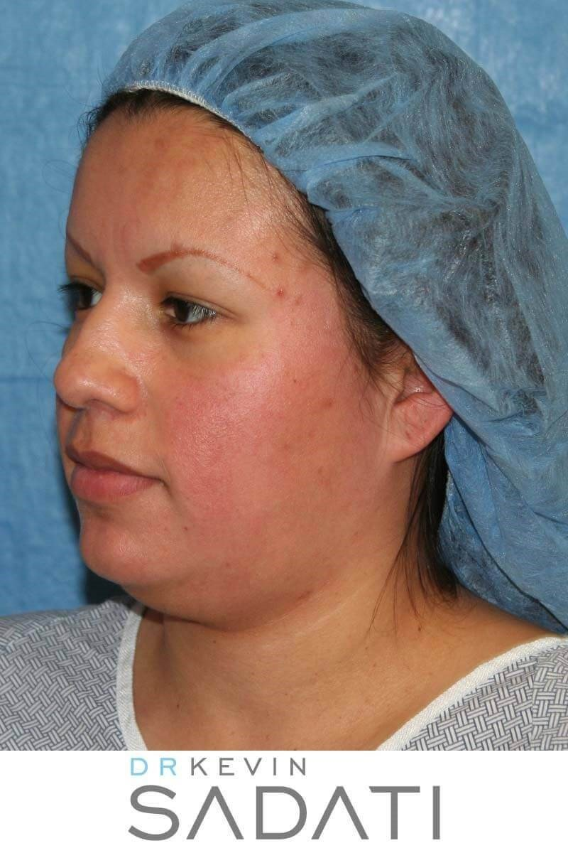 Open Rhinoplasty Procedure Before