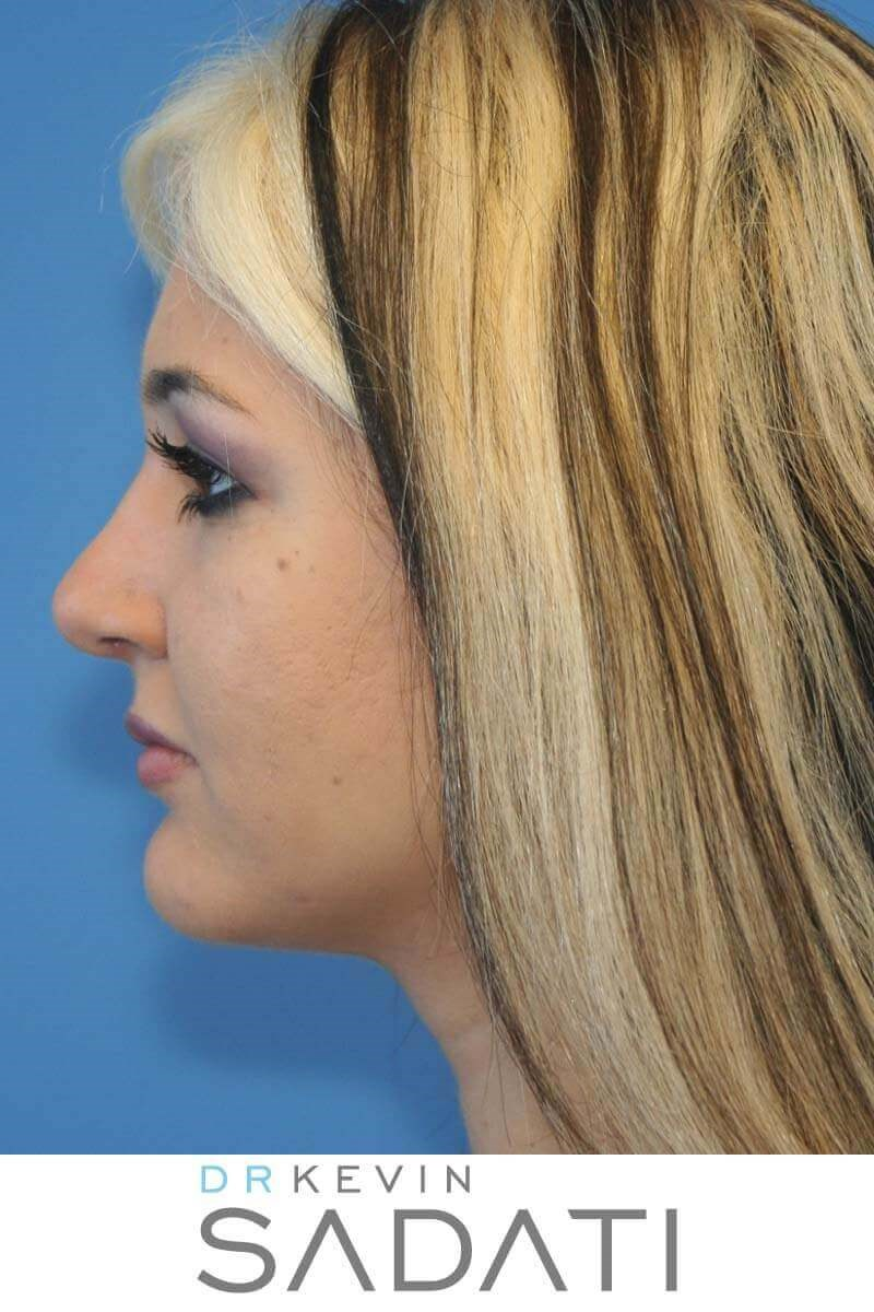Nose Job Newport Beach After