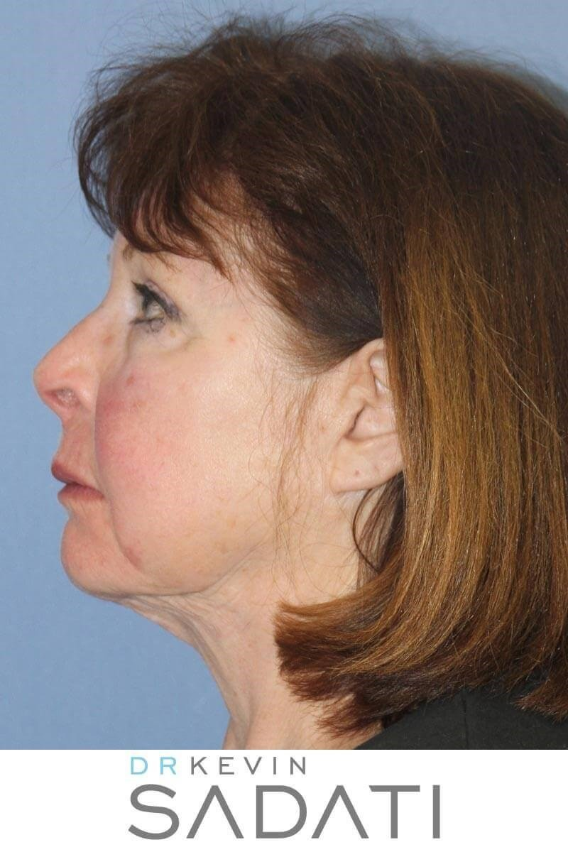 Facelift & Buccal Fat Removal Before