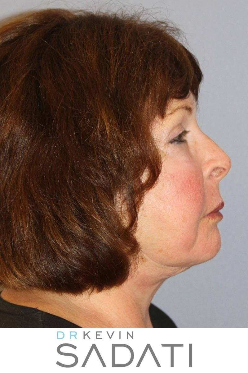 Facelift & Buccal Fat Removal After