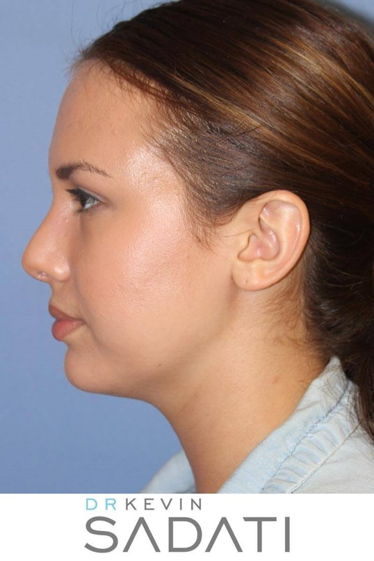 Teenage Rhinoplasty Left View After