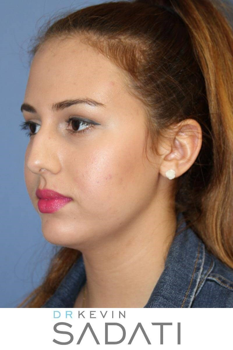 Teen Rhinoplasty Oblique View Before