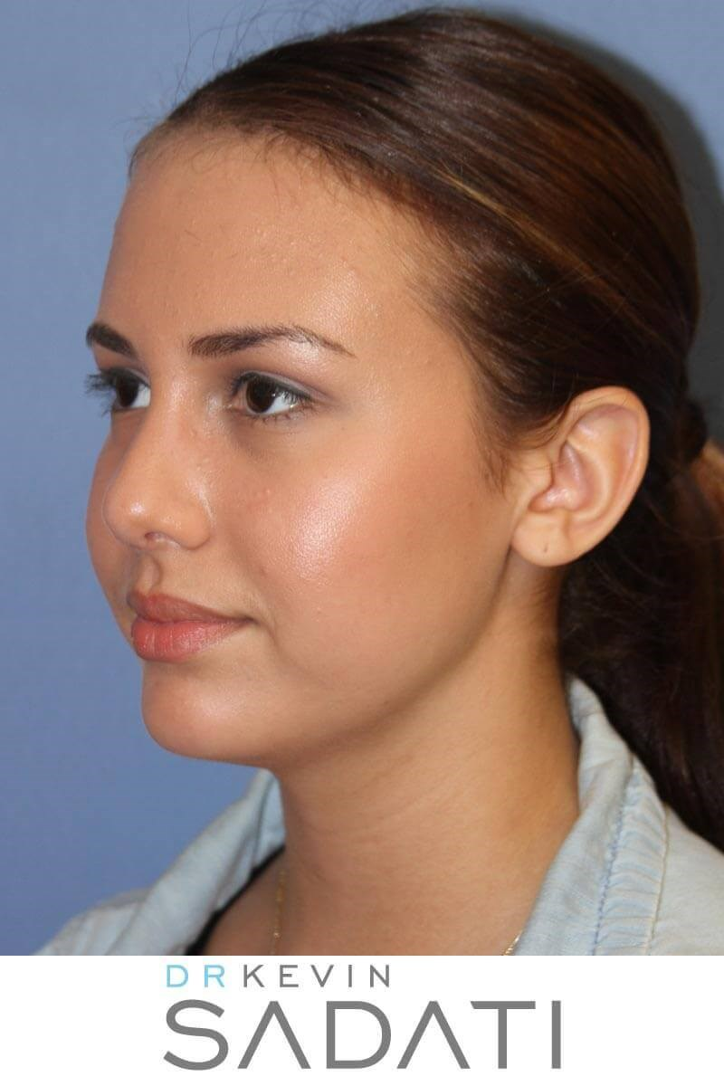 Teen Rhinoplasty Oblique View After