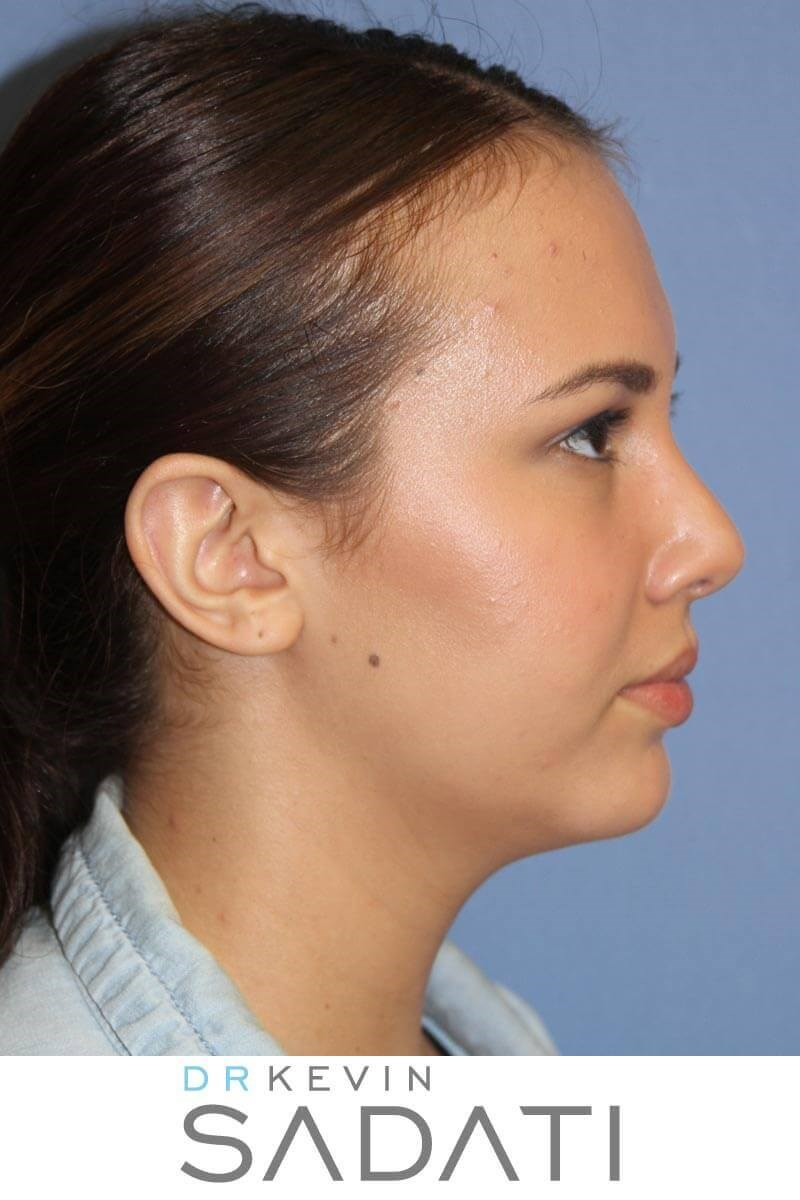 Teenage Rhinoplasty Right View After