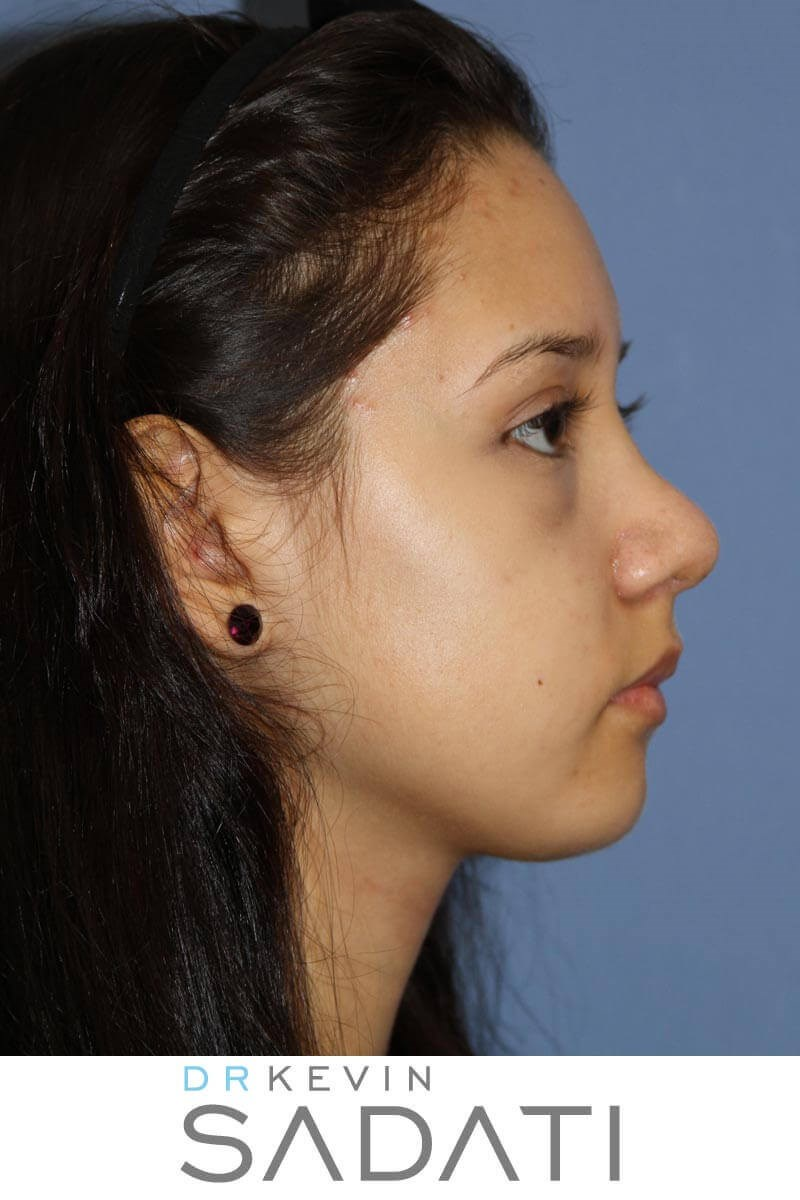 Teenage Nose Job Side View After