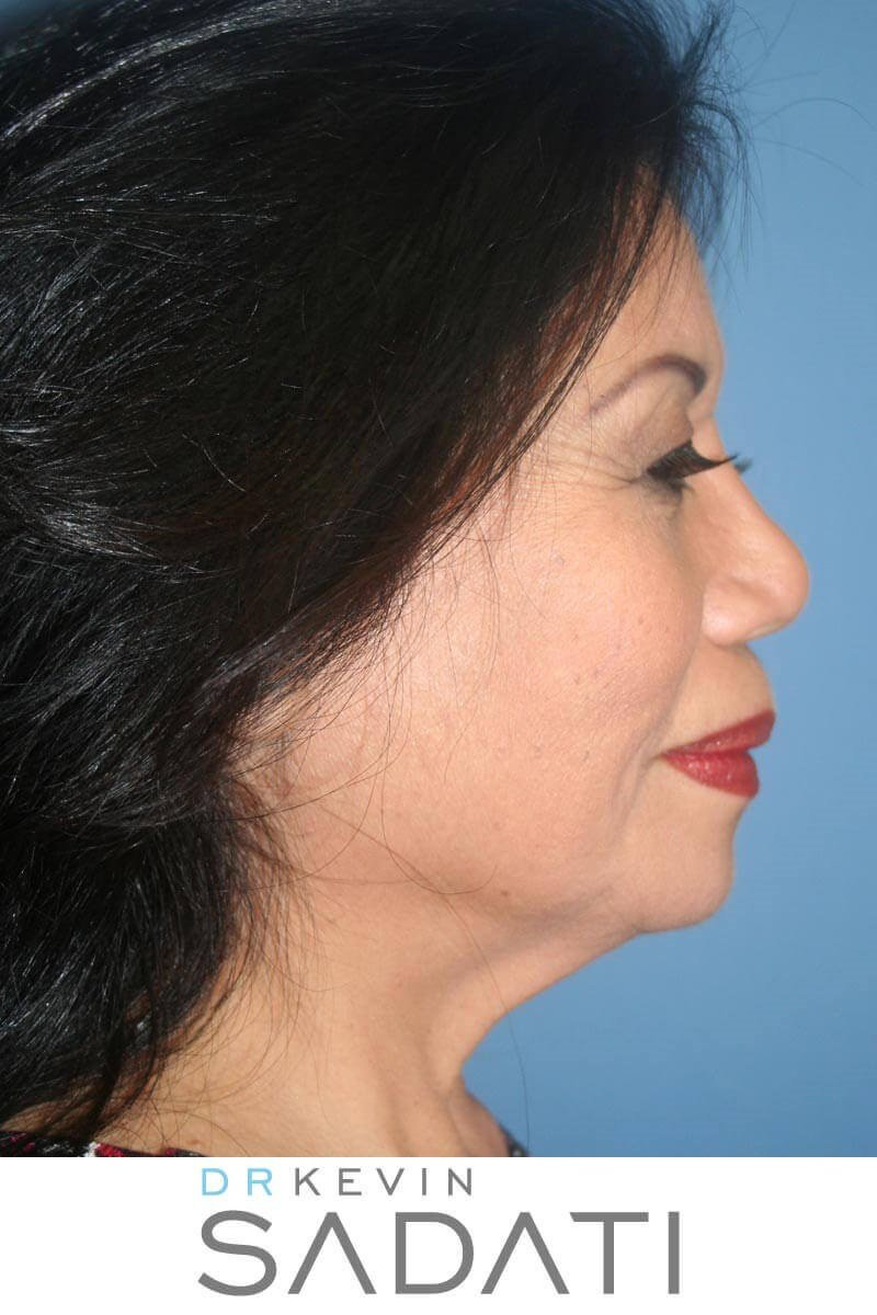 Facelift Before and After Before