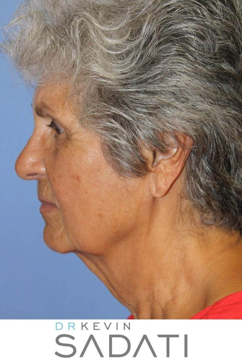 80 Yr Old Female Facelift Before