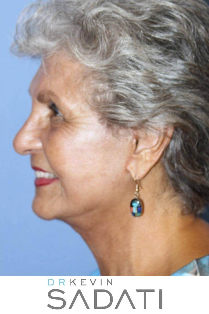 80 Yr Old Female Facelift After