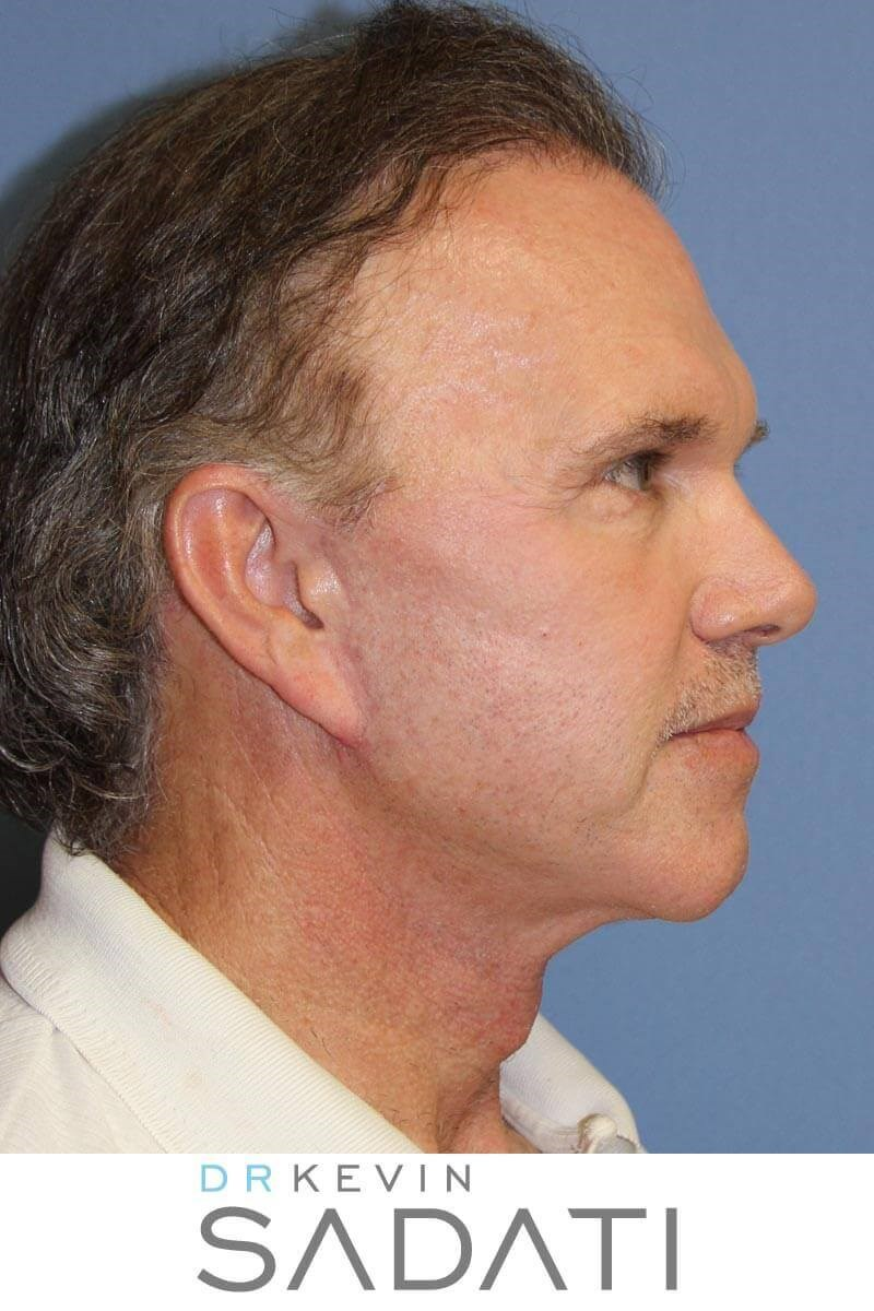 Male Facelift After