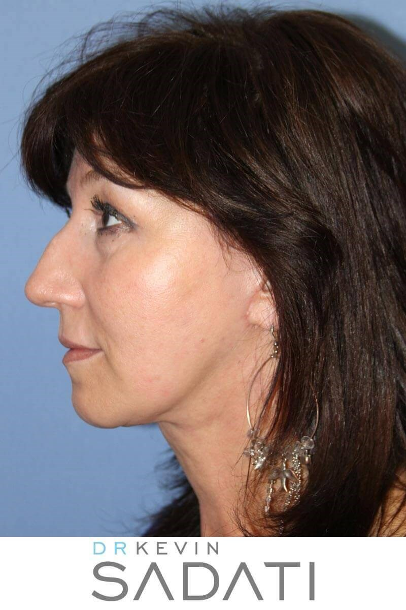 Facelift Orange County After