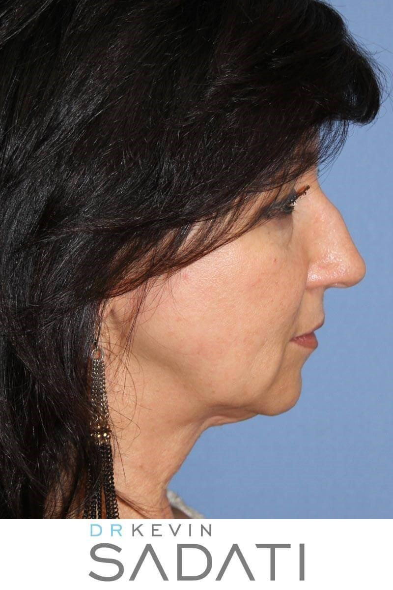 Facelift Orange County Before