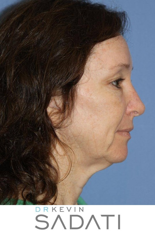 Natural Looking Facelift Before