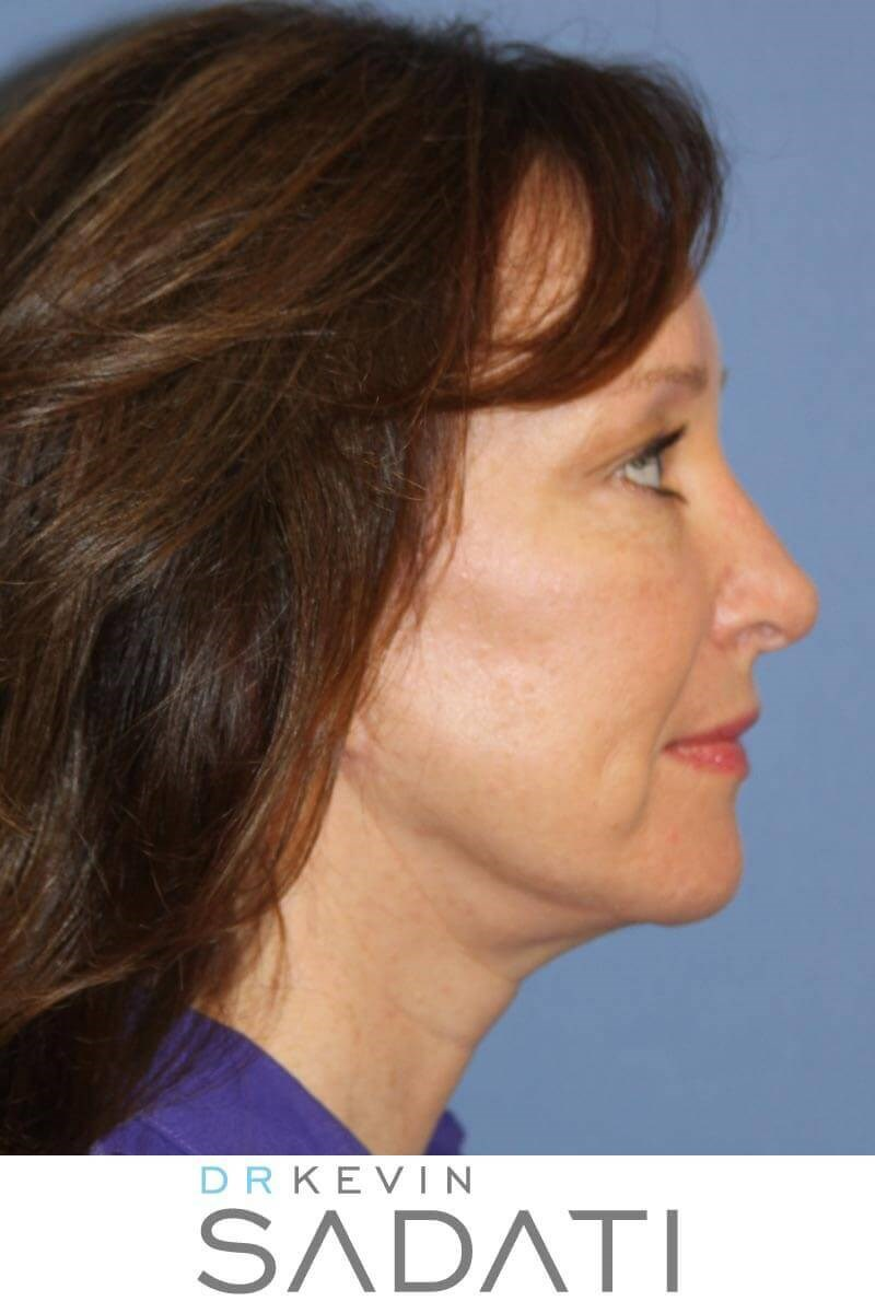 Natural Looking Facelift After