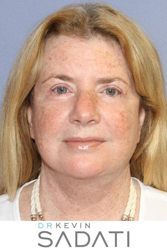 Facelift Results After