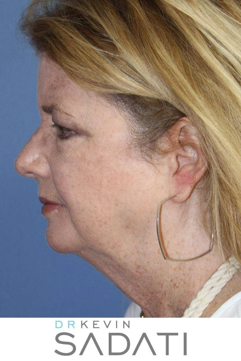 Facelift Results Before