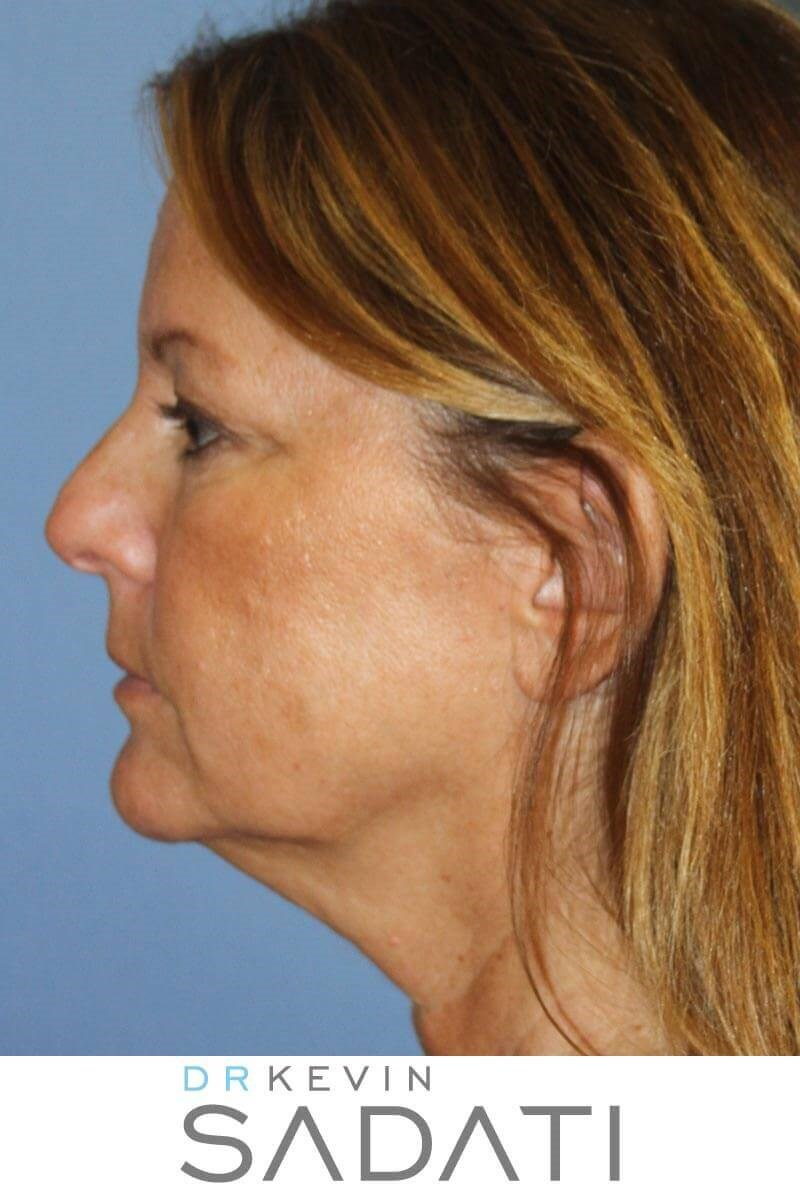 Facelift Surgery Results Before