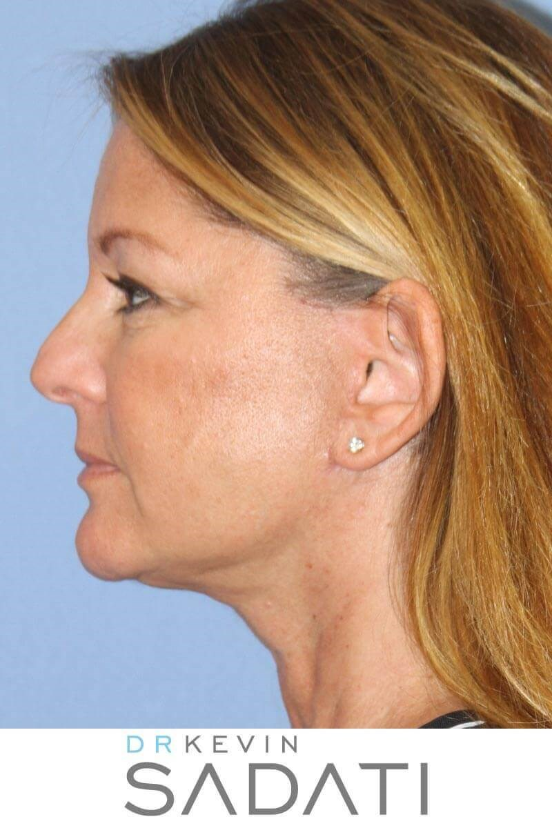 Facelift Surgery Results After