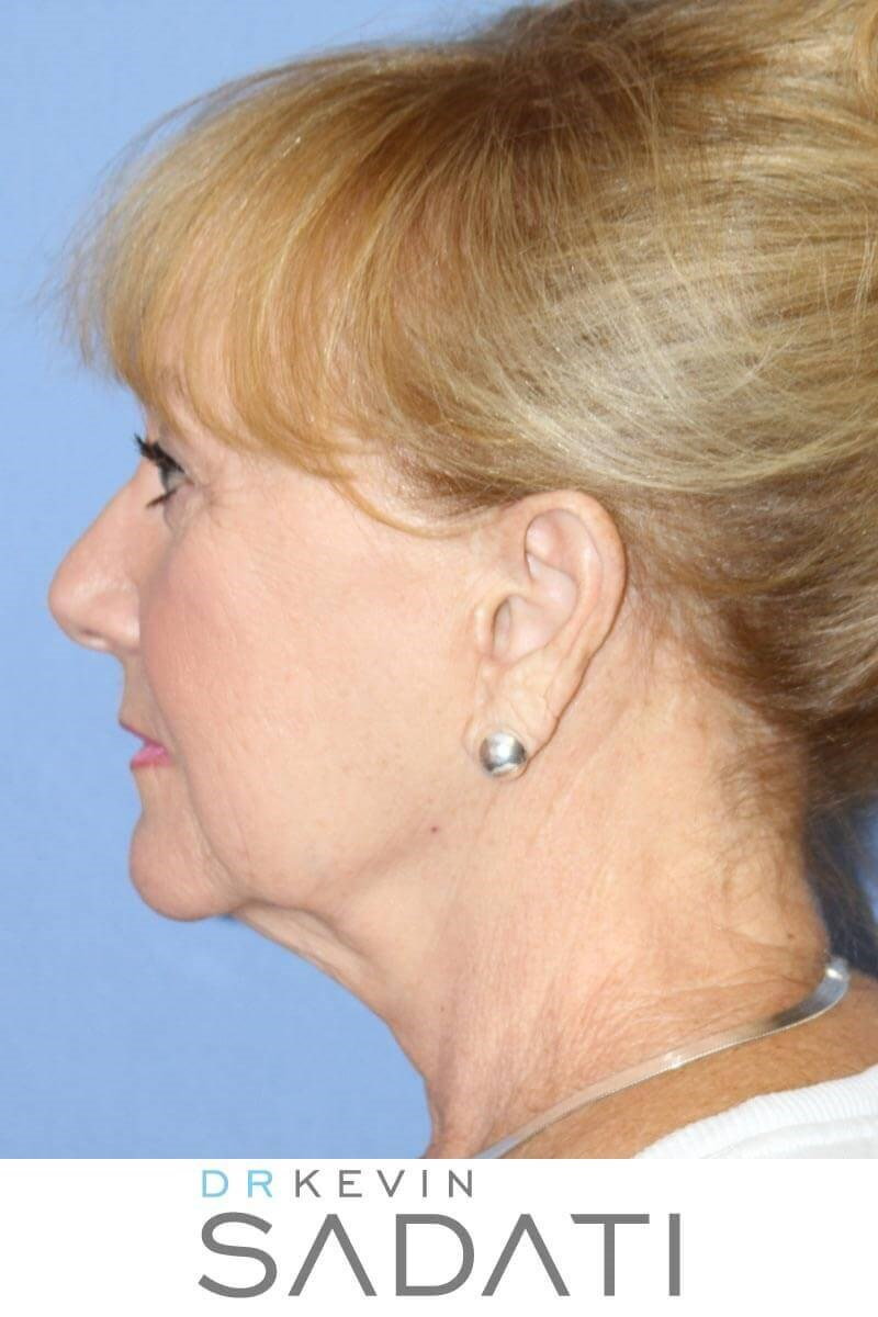 Facelift and Necklift Surgery Before