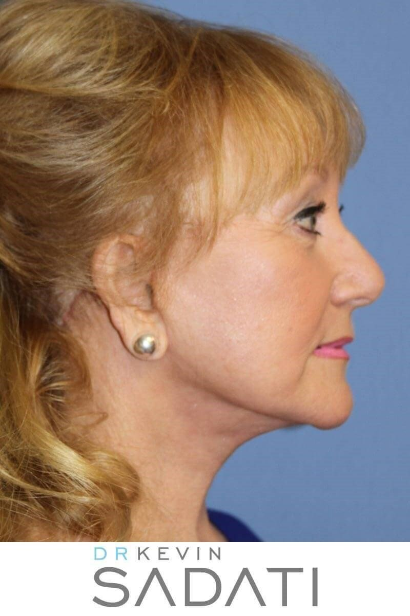 Facelift and Necklift Surgery After