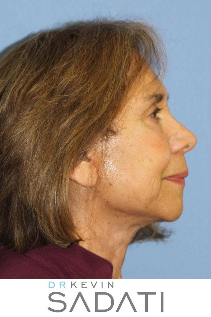 Laguna Hills Facelift After